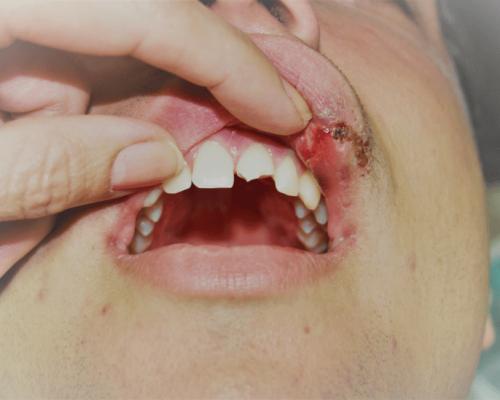 Lechenie na silno frakturirani jivi zybi pri travmi ili sled abraziq 2