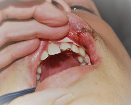 Lechenie na silno frakturirani jivi zybi pri travmi ili sled abraziq