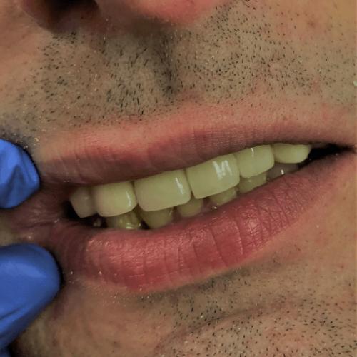 Protatichna stomatologiya - metalokeramichni i cirkonievi koroni i mostove 3